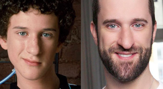 Dustin Diamond - Then and now.